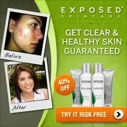 Exposed Skincare
