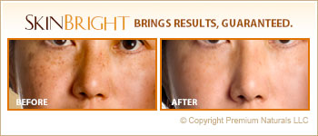 Before And After Age Spots