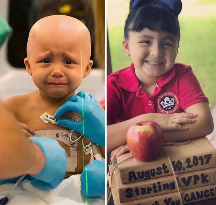 NTD Before After Pics Of People Who Beat Cancer1 -