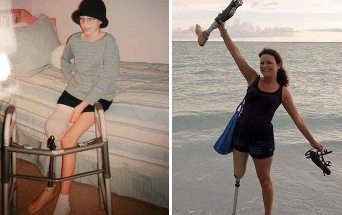 NTD Before After Pics Of People Who Beat Cancer2 -