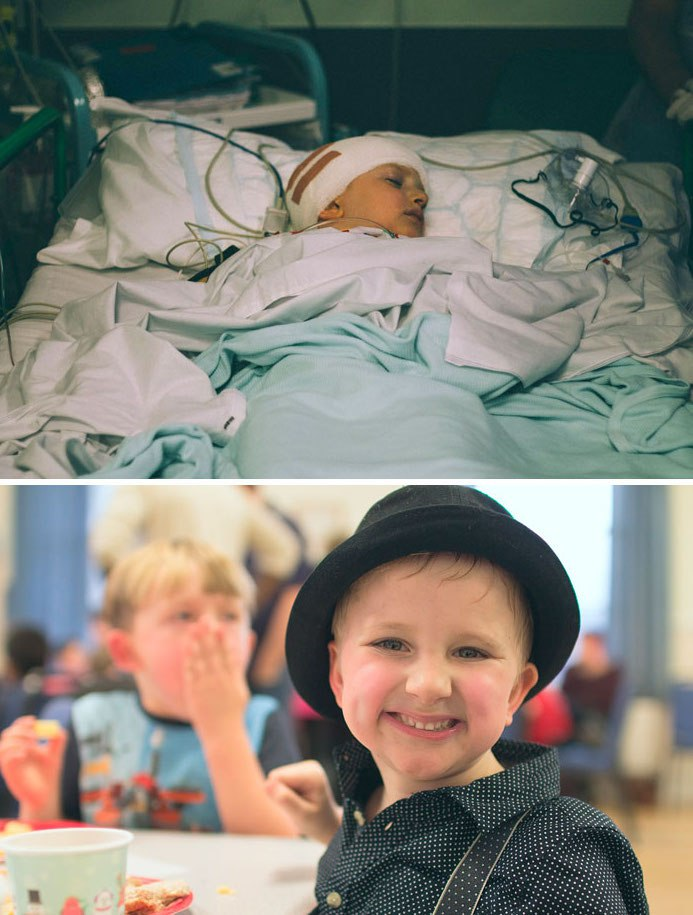 NTD Before After Pics Of People Who Beat Cancer4 -