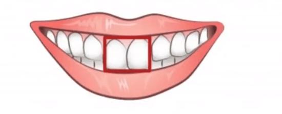 前歯の形で分かる性格テスト