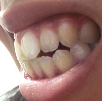 アデノイド 顔貌 歯並び에 대한 이미지 검색결과