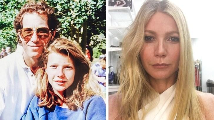 14Celebridades que solían ser ñoños dejóvenes