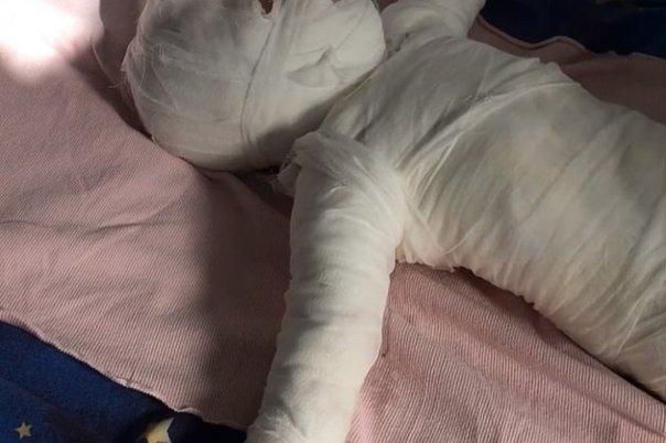 """Fue hervido vivo"""": niño de once meses lucha por su vida tras caer ..."""