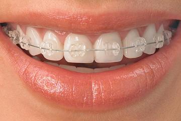 芸能人の歯 矯正ブラケット