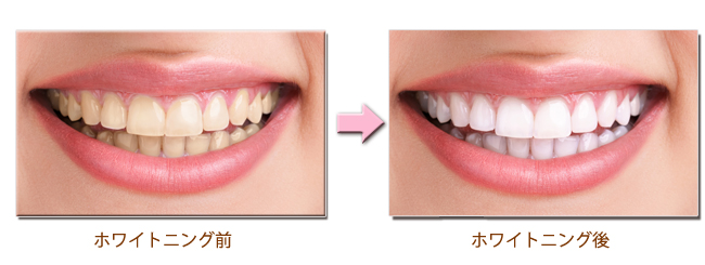 芸能人の歯