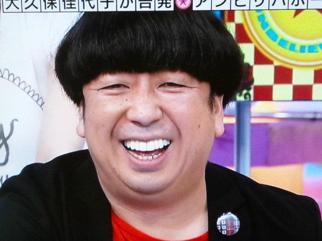 芸能人の歯 バナナマン日村