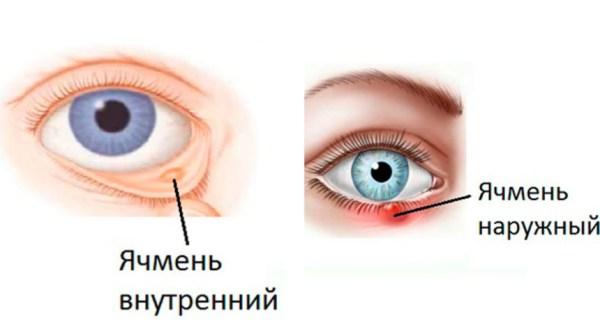 Ячмень на глазу: фото, у ребенка, лечение в домашних условиях
