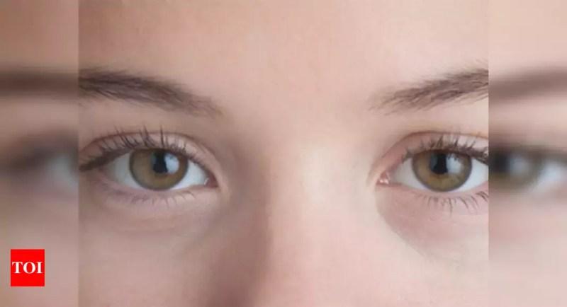 How To Repair Sunken Eyes Times Of India