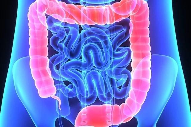 Síntomas de candidiasis y cómo curar