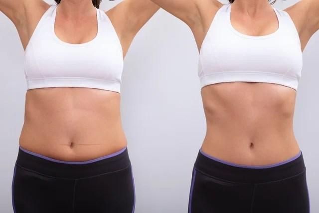 Mini abdominoplastia: o que é, como é feita e recuperação