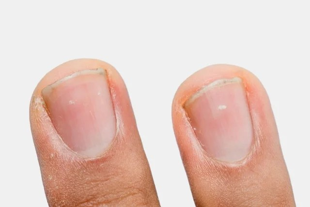 White spot on the nail: what can be and how to treat