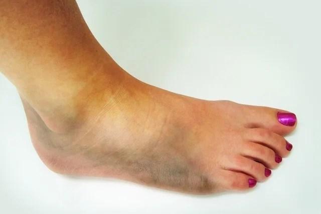 uma trombose principais sintomas