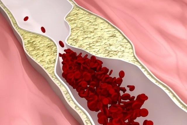Coronary artery disease: what it is, symptoms and treatment