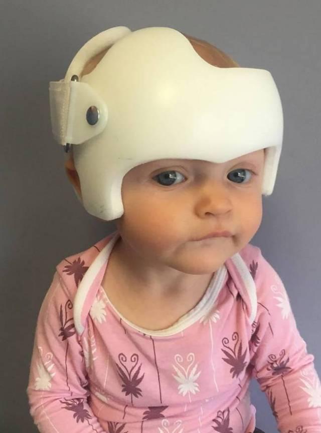 capacete-craniano