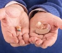 Минфин обещает обеспечить кохлеарными имплантами всех детей, которые в них нуждаются