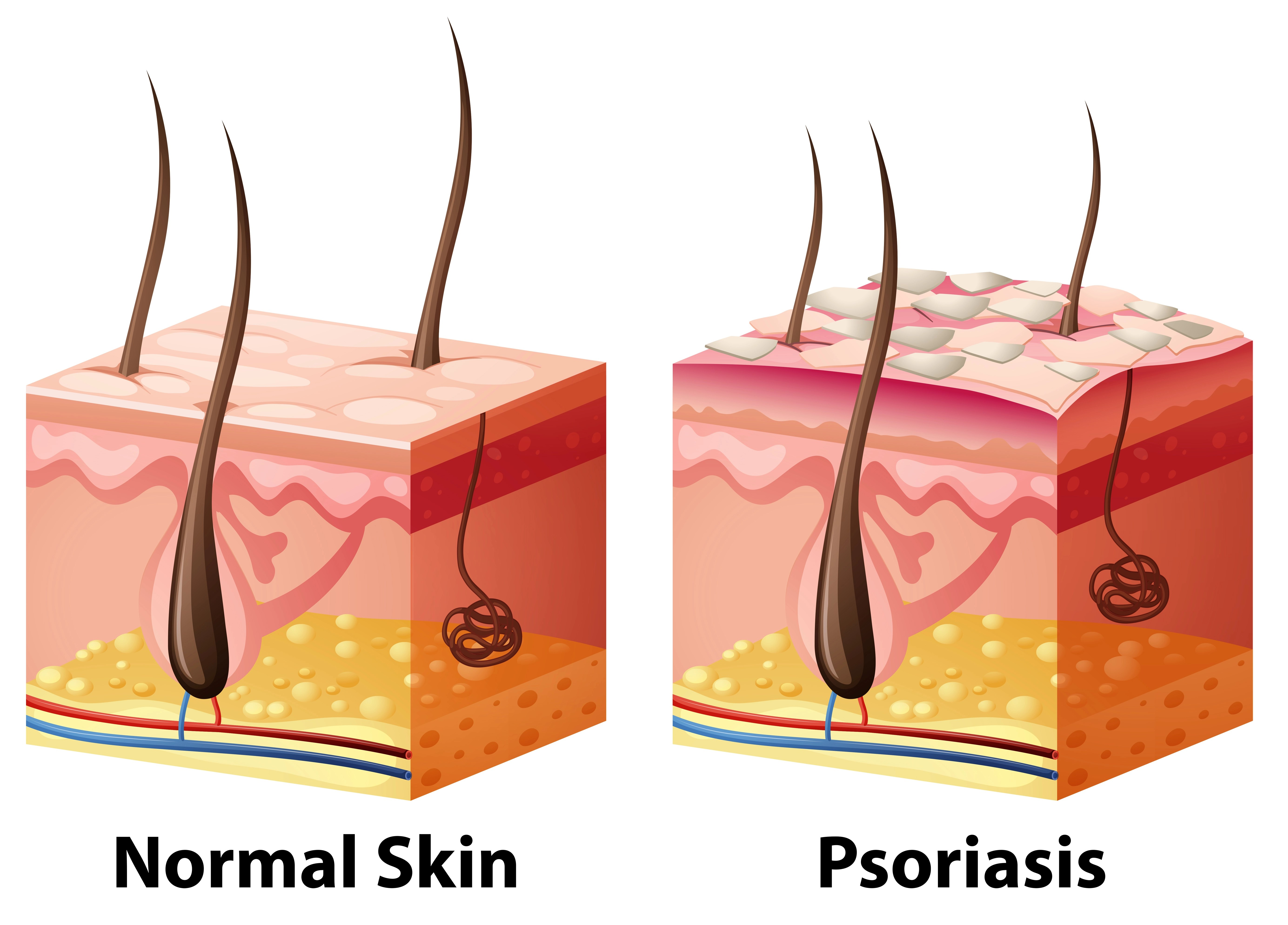 Human Skin Diagram With Normal And Psoriasis