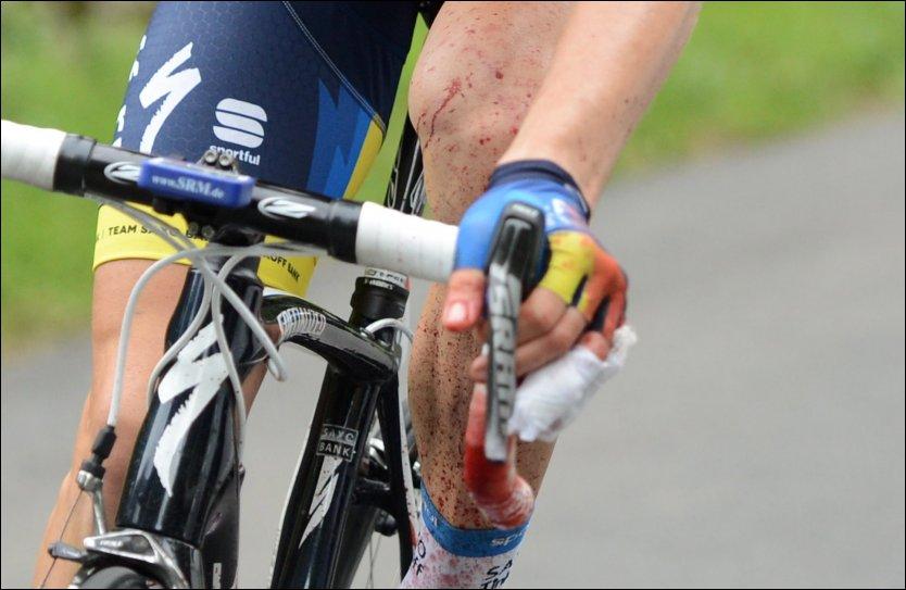 BLODIG: Chris Anker Sørensen fikk et brutalt møte med sin egen sykkel torsdag ettermiddag. Foto: Scanpix/EPA.