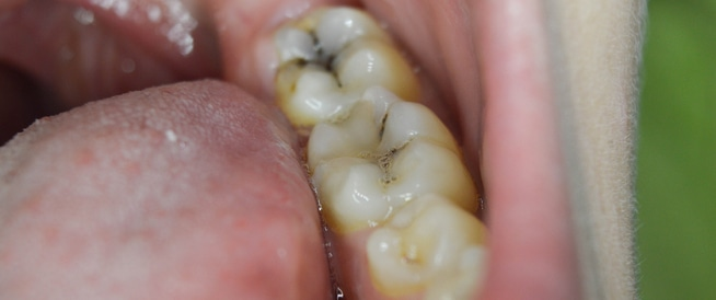 تسوس الأسنان الأسباب الأعراض والعلاج ويب طب