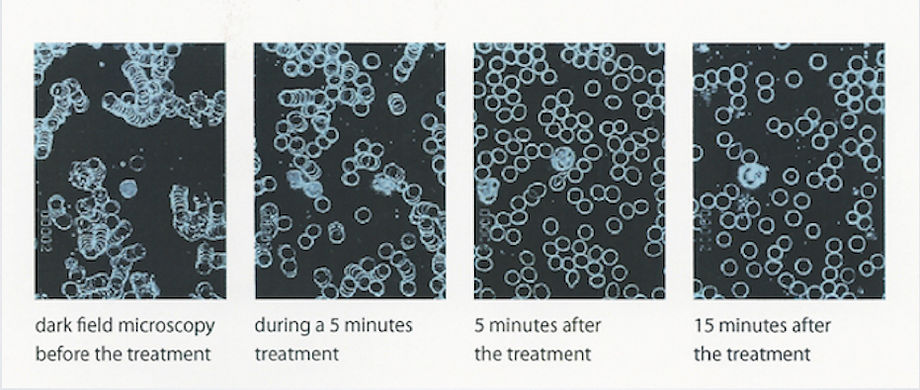 Cells before and after 15 minutes of treatment wit QRS