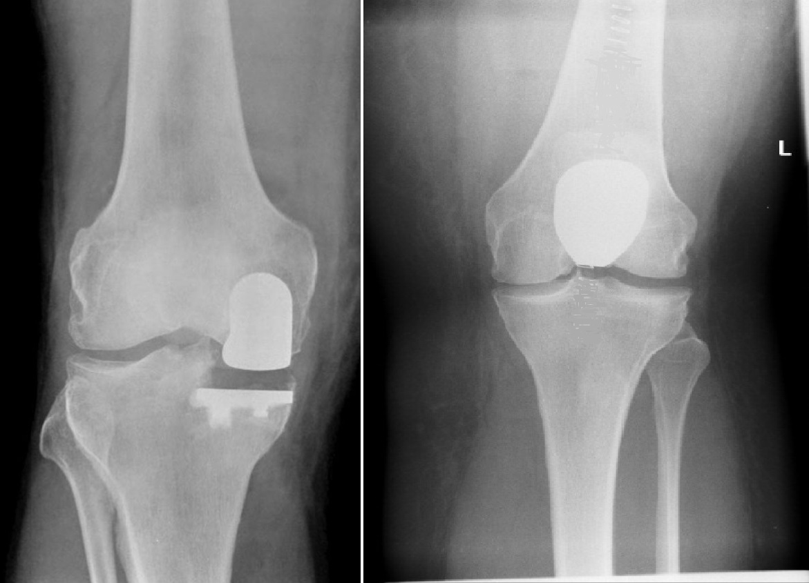 </h4> <p>knee replacement complications