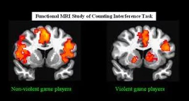 The Effects of Violent Video Games   Brain Activity Those who played violent video games had a lot of activity in the  amygdala a part of the limbic system  as well as less activity in the  frontal lobes which