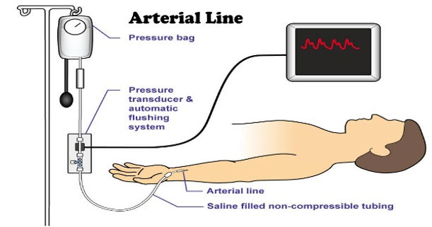 Blood Aterial Pressure Cable