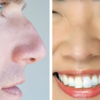 Ancestral Climates May Have Shaped Your Nose by STEPH YIN