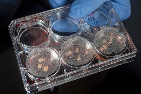 A tray of brain organoids cultured with a Neanderthal gene in Dr. Muotri's lab. The neurons formed fewer connections, the researchers found.