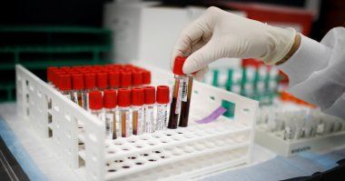 Could a Blood Test Show if a Covid-19 Vaccine Works?