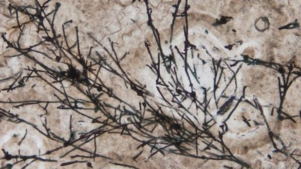 Imagen microscópica de los microfósiles filamentosos parecidos a hongos