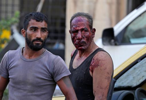 Un hombre con el rostro ensangrentado tras la explosión en Beirut