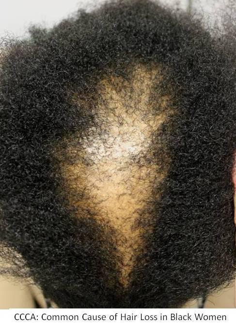 Hair Loss In Black Women CCCA Hair Restoration