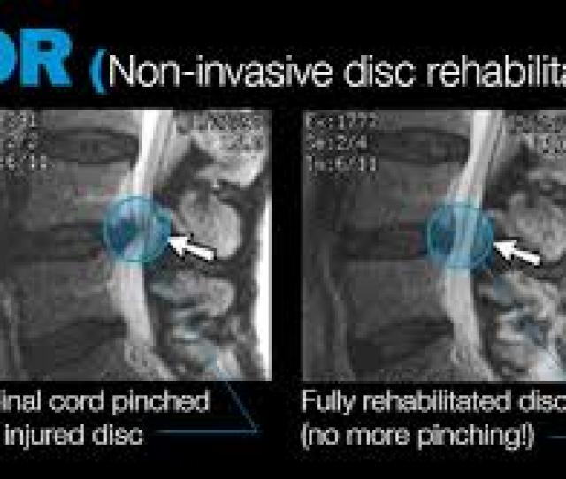 Dr Matt Has Been Successfully Treating Bulging And Herniated Discs For Over  Years Non Surgical Spinal Decompression Therapy Is Usually A Key In