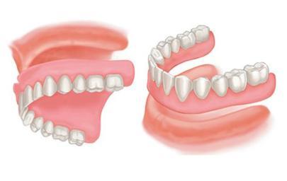 Gigi Palsu Penuh- Global Estetik Dental Care