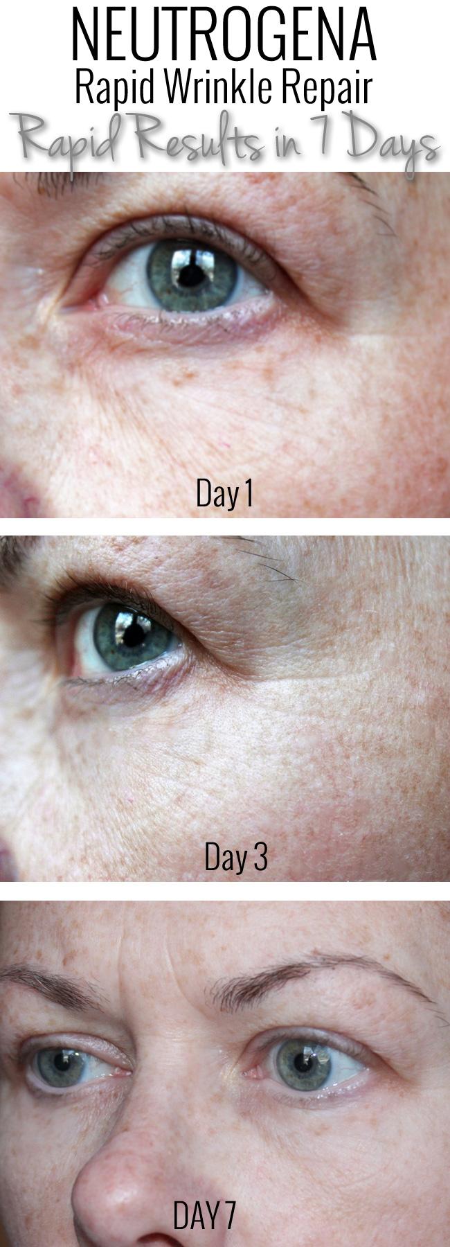 Neutrogena Rapid Wrinkle Repair Results