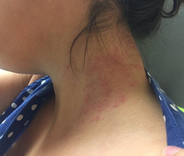 Friday Morning Dust Mite Allergy Injections Causes Eczema Reaction