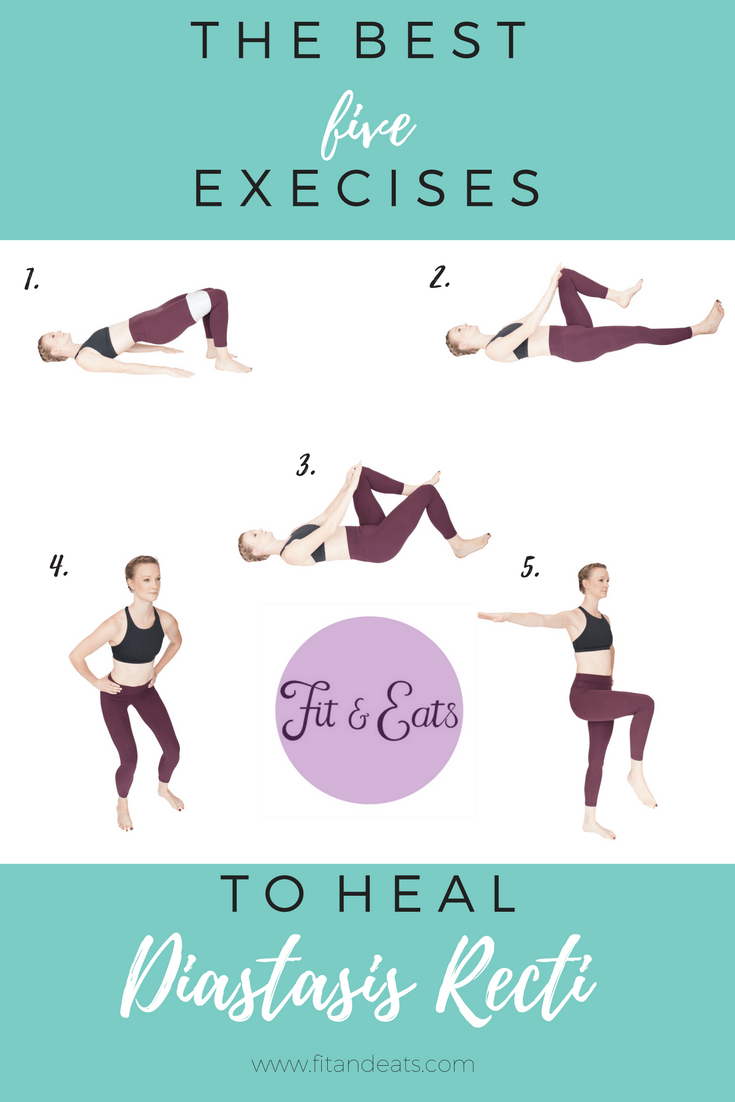 Heal Diastasis Recti Exercises