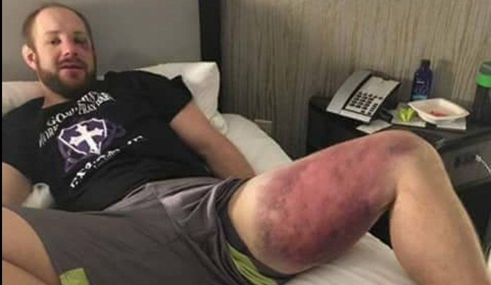 Jared Torgeson after fighting Thiago Silva