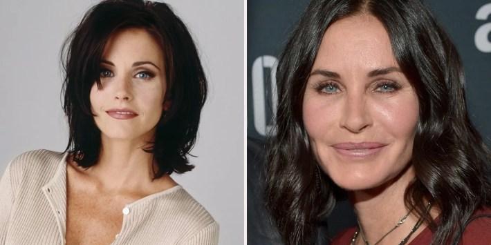 actors who regret getting plastic surgery | screenrant