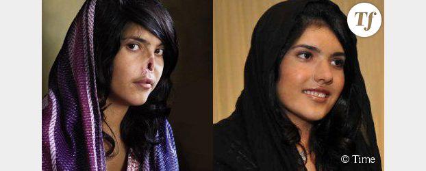 Aisha Mohammadzai dévoile son nouveau nez après sa mutilation