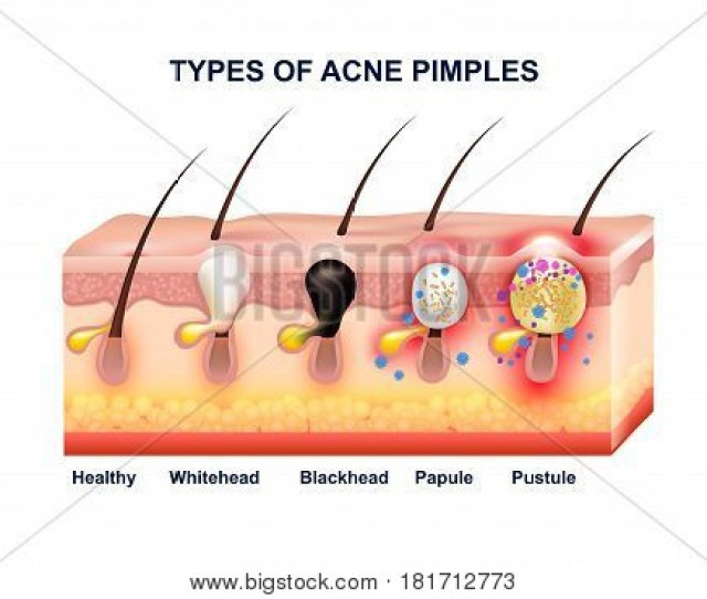 Colored Skin Acne Anatomy Composition With Types Of Acne Pimples Before And After Vector Illustration Poster