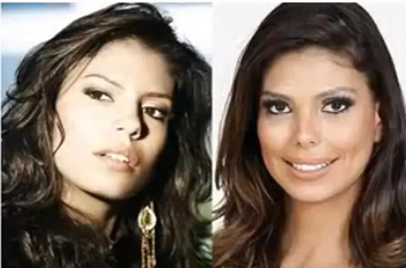 Former beauty queen and television presenter Bruna Felisberto reportedly had a nose job and cheek implants.