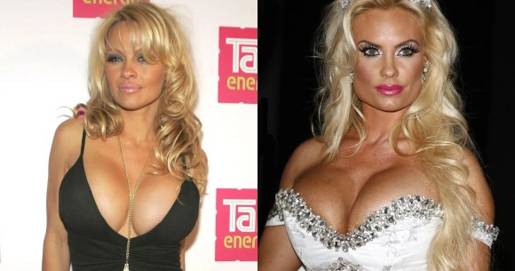 15 Celebrity Boob Jobs That Are Just Too Much