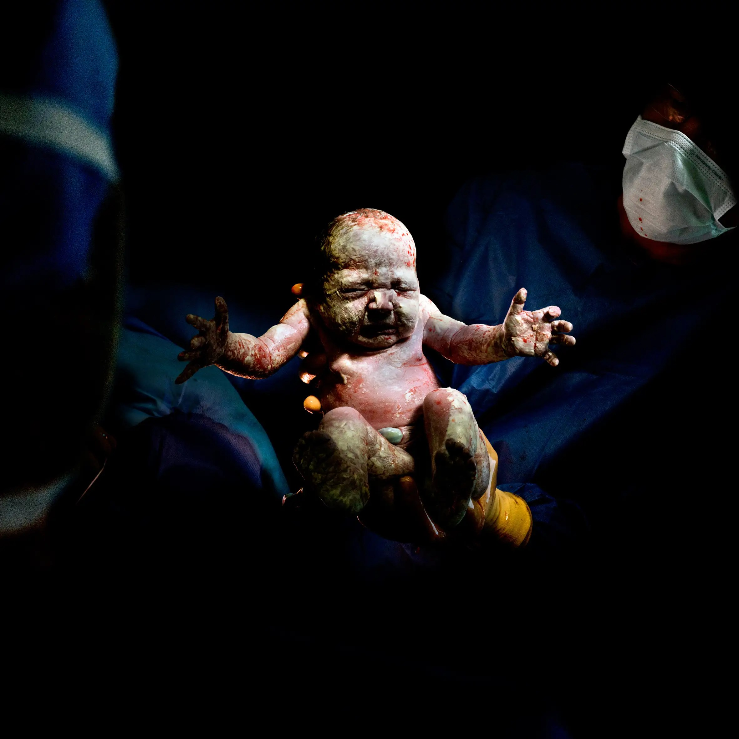 "This project, called ""Caesar,"" shows children born by cesarean section."