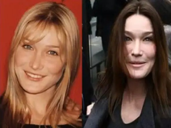 Former French First Lady Carla Bruni's puffy face is reportedly the result of Botox.