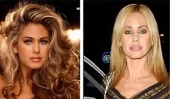 Former Playboy playmate Shauna Sand's lip injections have totally changed the appearance of her face.