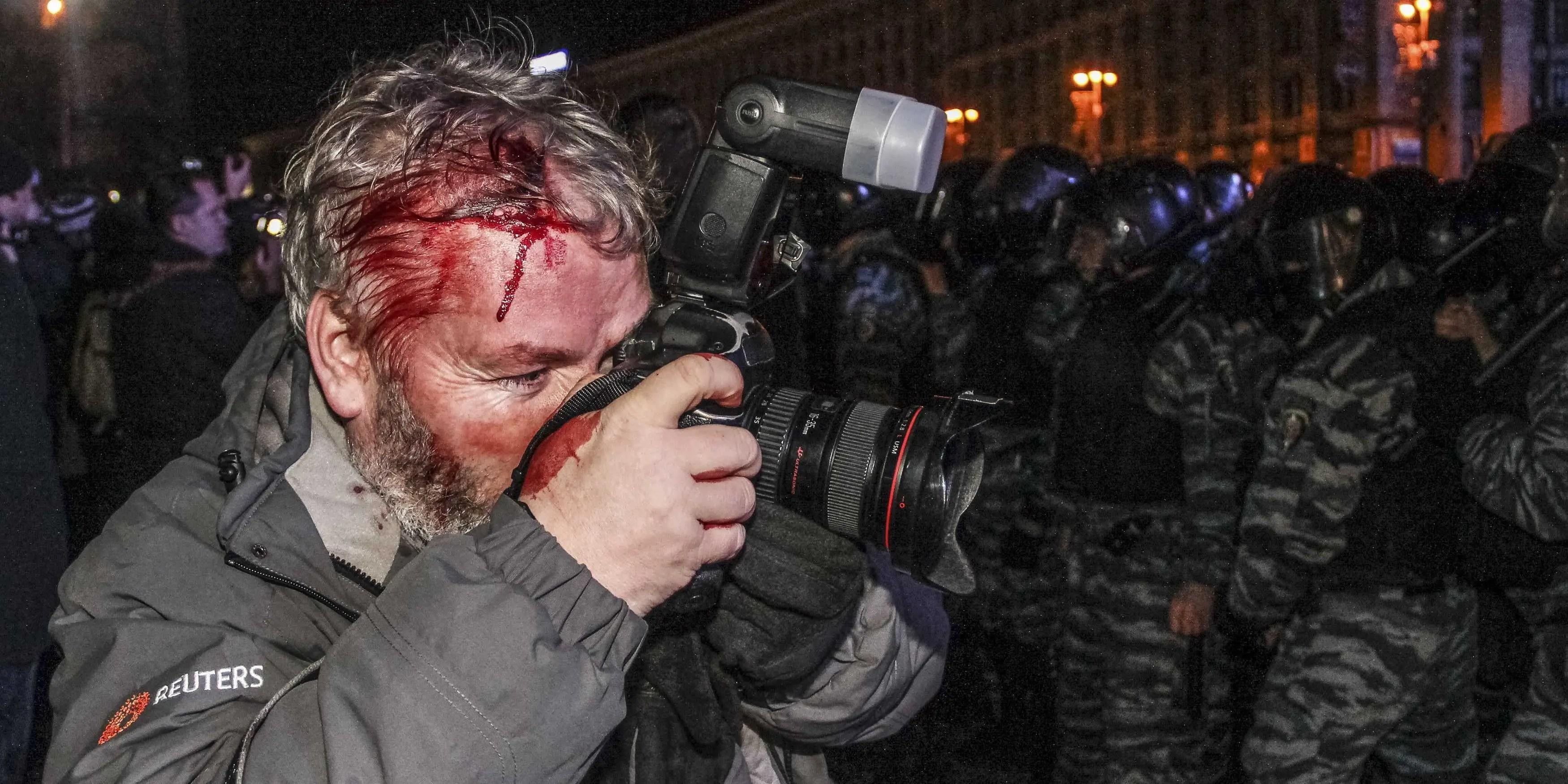 Reuters Photographer Hurt