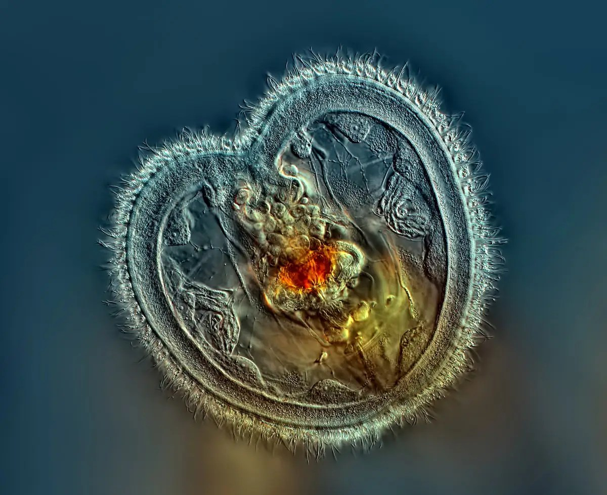 """Panamanian Rogelio Moreno won first place at Nikon's """"Small World"""" photo contest for his image of a miniscule freshwater creature known as the rotifer. Moreno captured the tiny critter as it was sweeping food into its open mouth. It's magnified 40 times."""